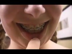 Teen in braces has hot anal sex Thumb